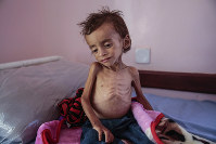 In this Oct. 1, 2018 photo, a malnourished boy sits on a hospital bed at the Aslam Health Center, Hajjah, Yemen. (AP Photo/Hani Mohammed)