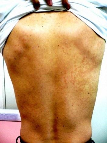 癜風(でんぷう)の患者の背中。右側の真ん中あたりの淡いピンクのまだらが癜風