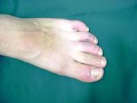指先がしもやけになった子どもの足。赤黒く変色して腫れている=ユースキン製薬提供
