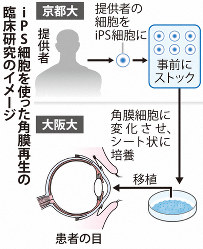 iPS細胞を使った角膜再生の臨床研究のイメージ
