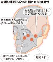 左頬を地面にぶつけ、腫れた80歳男性