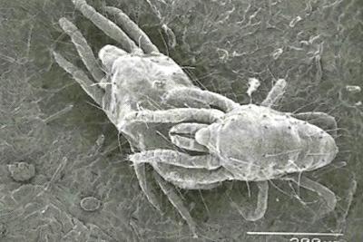 ナミハダニの「ガーディング」の顕微鏡写真=五箇公一さん提供