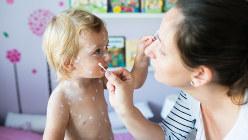 水ぼうそうにかかり、肌にクリームを塗ってもらう子ども