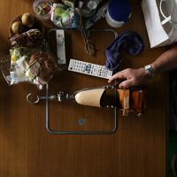 食卓の上にふと置かれた義手。自宅では、外して過ごす時間も長い=大阪府池田市で、小出洋平撮影