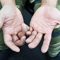厳しいトレーニングを重ねて、大きなまめができた大塚博幸さんの手=兵庫県姫路市で、山崎一輝撮影