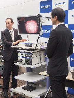 オリンパスは内視鏡システムに、協業他社のAI診断支援ソフトも接続できる技術を開発(オリンパス提供)