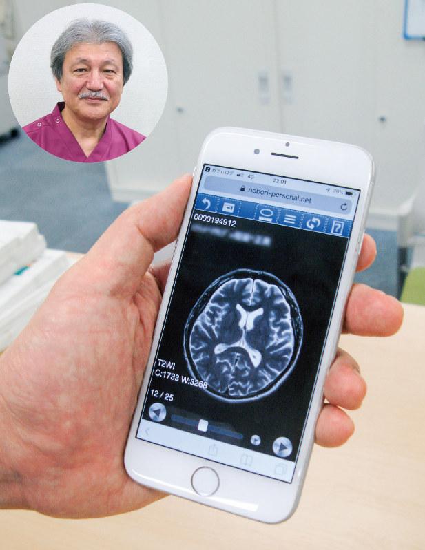 これまでは病院が保管したMRI画像データを、スマホでいつでも見られる(円内は等潤病院の伊藤雅史院長)