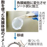 iPS細胞を使った角膜移植のイメージ