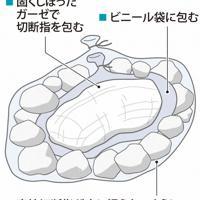 切断指の最適な保存方法