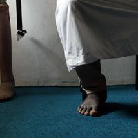義足で生活をする国内避難民のサリュ・ブバさん(37)。2004年、農場へ行く途中交通事故に遭い左足を失った。14年にボコ・ハラムの襲撃に遭い、家族と一緒にボルノ州南西部から避難、マイドゥグリの難民キャンプにたどり着いた。18年に赤十字国際委員会の協力で、義足の提供を受け、近くの借地で農業を営んでいる。ブバさんは「義足を付けると作物の収穫などができるようになった」と話した=マイドゥグリで2019年9月26日、山崎一輝撮影