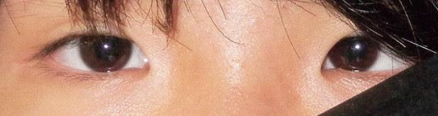 斜視 治し 方 内 斜視は治療できるの?大人になったらできない?