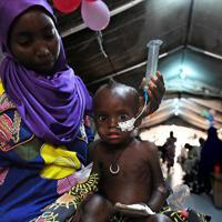 栄養失調患者に特化した「国境なき医師団」の小児集中治療室で、鼻から栄養を摂取する子どもと母親=ナイジェリア・ボルノ州マイドゥグリで2019年9月30日、山崎一輝撮影