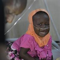 救急救命室で治療を受けながら泣く子ども=ナイジェリア・ボルノ州マイドゥグリで2019年9月27日、山崎一輝撮影
