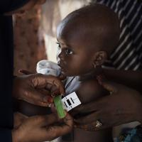 栄養状態を把握するため腕の周囲を計測される患者の子ども=ナイジェリア・ボルノ州マイドゥグリで2019年9月30日、山崎一輝撮影