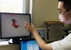 顕微鏡による細菌検査の結果を、画面で確認する医師