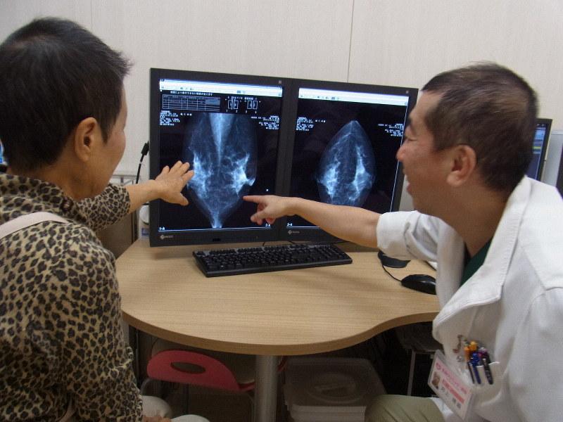マンモグラフィーで撮った写真を画面に映して説明する医師