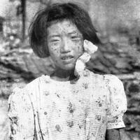 被爆3日後に撮影された藤井幸子さん=広島市で1945年8月9日、国平幸男撮影