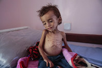 In this Oct. 1, 2018, file photo, a malnourished boy sits on a hospital bed at the Aslam Health Center, Hajjah, Yemen. (AP Photo/Hani Mohammed)