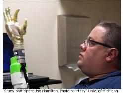 ロボット義手の研究に参加したジョー・ハミルトンさん(ミシガン大提供)