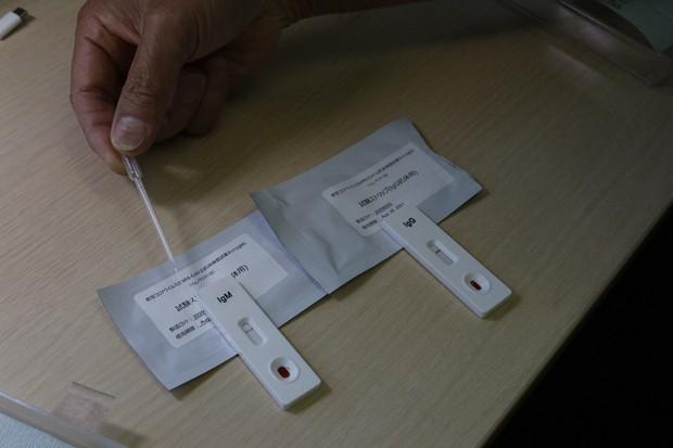 コロナ 免疫 検査