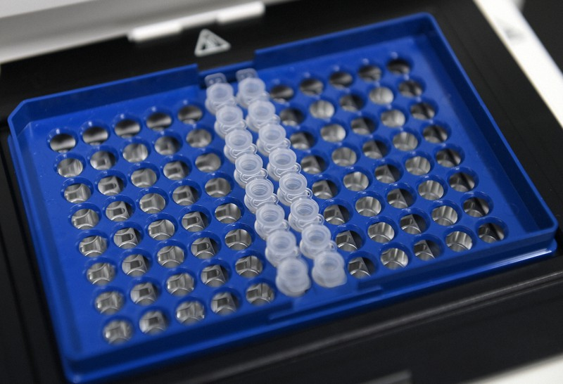 PCR検査機器と検体を入れる容器=大阪市淀川区の市立十三市民病院で2020年6月2日、久保玲撮影