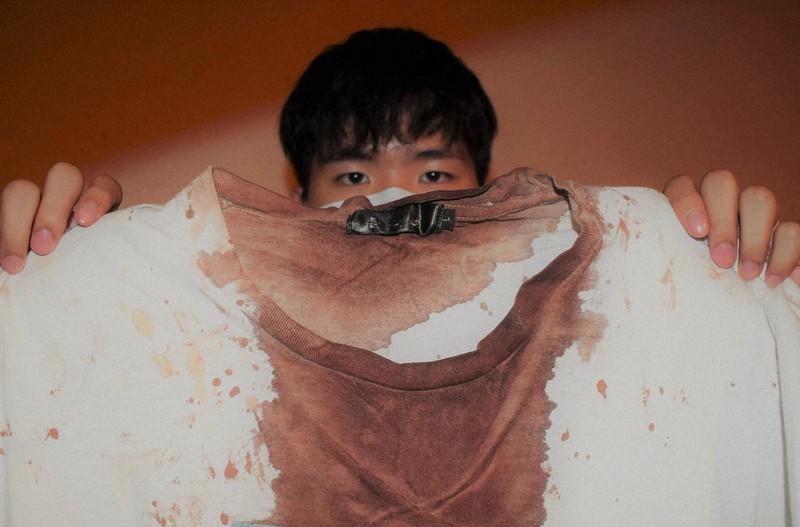 血で染まったTシャツを手にする李さん=香港で2020年9月3日、福岡静哉撮影