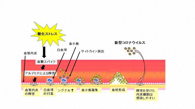 ウイルス 血栓 コロナ 新型コロナウイルス感染症にみられる特徴的な皮膚症状(大塚篤司)