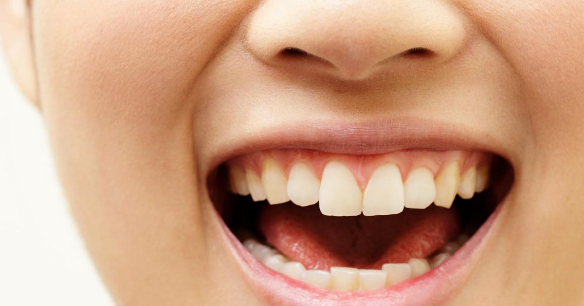 の コロナ しびれ 舌 コロナワクチン、アナフィラキシー疑い36人 高頻度?