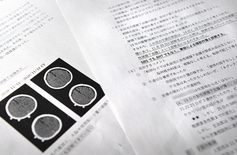 両親が依頼した脳神経外科医がまとめた意見書。「事故による頭部外傷」とし、最初の転倒による急性硬膜下血腫が見逃されたことを指摘している(画像の一部を加工しています)