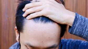 頭髪を気にする男性は多い