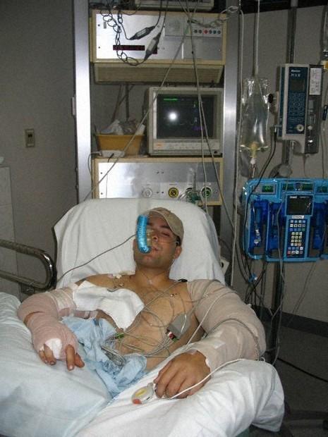 アフガニスタンの戦闘で5発の銃弾を受けて入院していたマイケル・カラスキロさん=本人提供