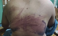 This photo obtained by The Associated Press shows injuries a man in his 20s says he received while being tortured by Myanmar's military during an interrogation session in March 2021. (AP Photo)